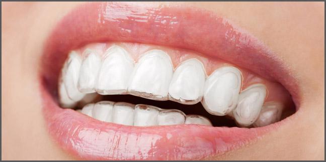 Orthodontics Wood Bury